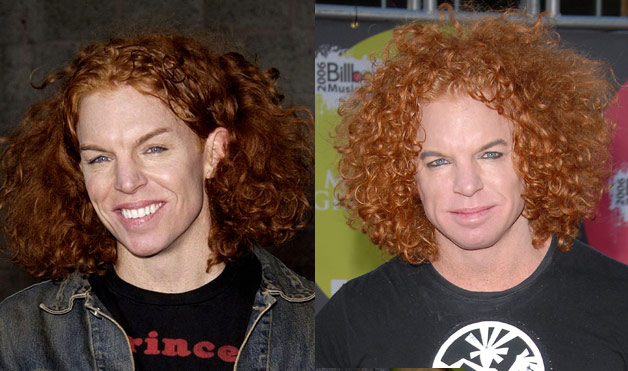 carrot top before. Carrot Top before and after